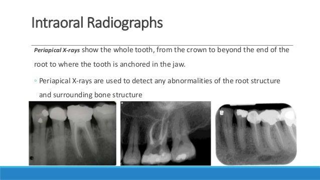 dental radiology course