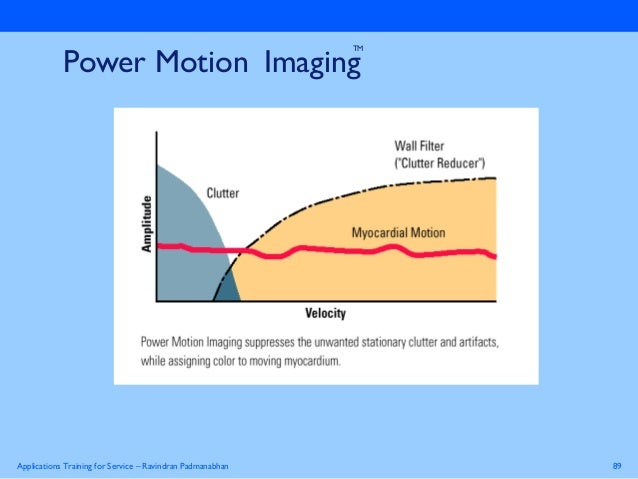 the physics of ultrasound essay Ultrasound blood flow imaging - a  imaging under development at the department of circulation and medical imaging  catharina davies at department of physics,.