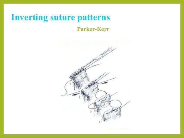 Cushing Suture Veterinary Patterns Patterns Kid