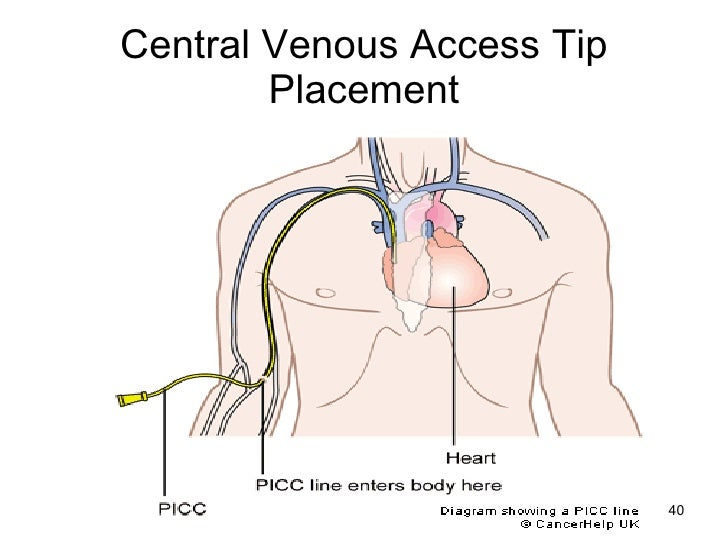 Central line placement anatomy