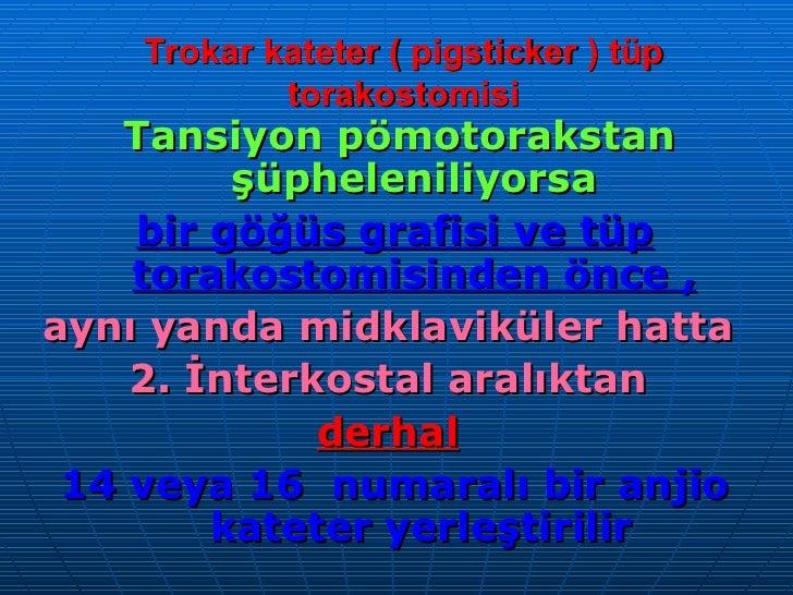 Trokar kateter ( pigsticker ) tüp torakostomisi <ul><li>Tansiyon pömotorakstan şüpheleniliyorsa  </li></ul><ul><li>bir göğ...