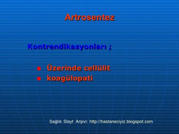 Artrosentez <ul><li>Kontrendikasyonları ; </li></ul><ul><ul><li>Üzerinde cellülit </li></ul></ul><ul><ul><li>koagülopati <...