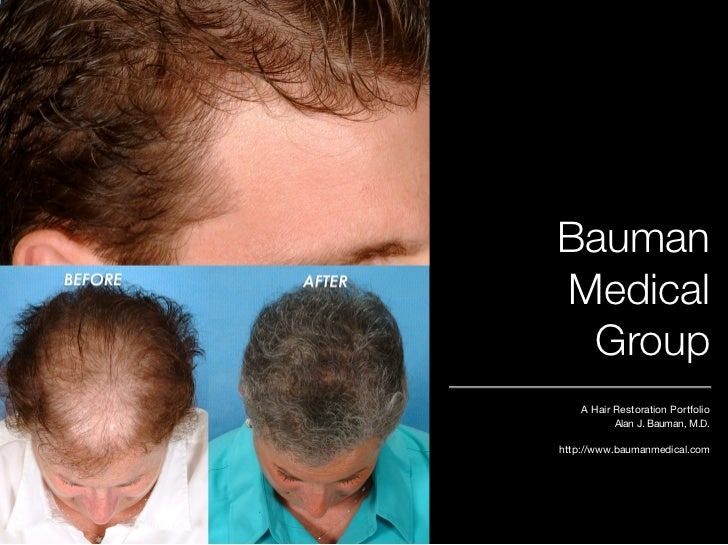 Bauman Medical  Group     A Hair Restoration Portfolio            Alan J. Bauman, M.D.  http://www.baumanmedical.com