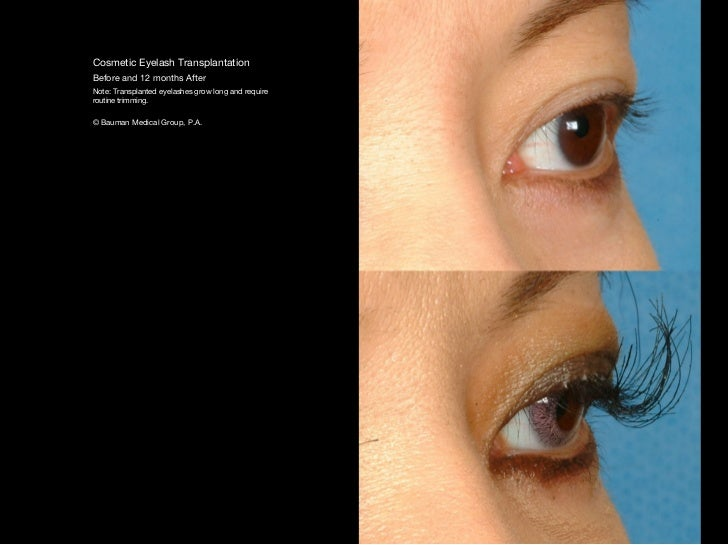 trim eyebrows before and after. bauman medical group, p.a.; 50. cosmetic eyelash transplantation before trim eyebrows and after w