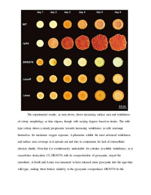 Galactosemia research paper