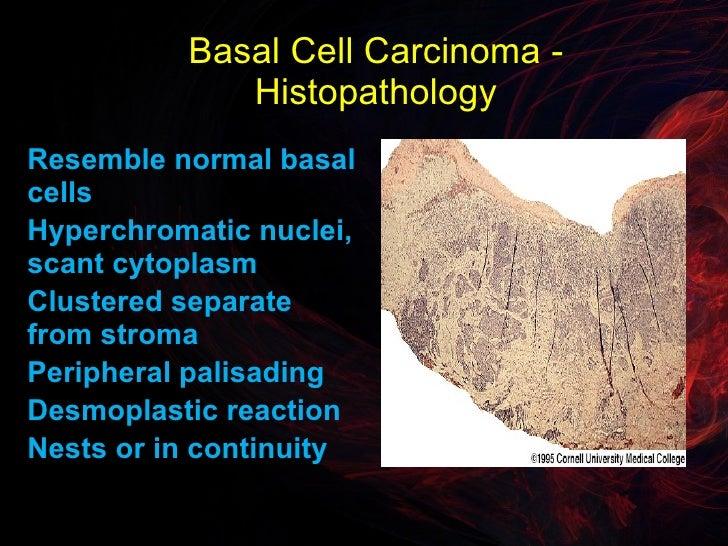 basal cell carcinoma
