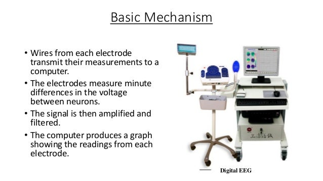 BCI Types Invasive Neurosurgery Partial Invasive ECoG Non Invasive EEG MEG fMRI