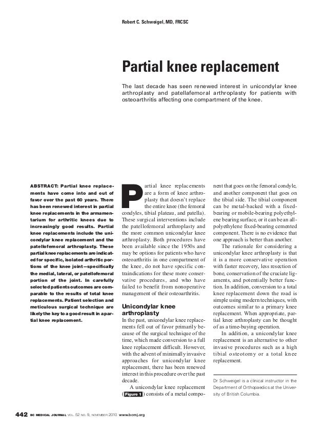 BC MEDICAL JOURNAL VOL. 52 NO. 9, NOVEMBER 2010 www.bcmj.org442 ABSTRACT: Partial knee replace- ments have come into and o...