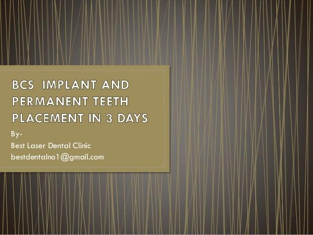 By- Best Laser Dental Clinic bestdentalno1@gmail.com