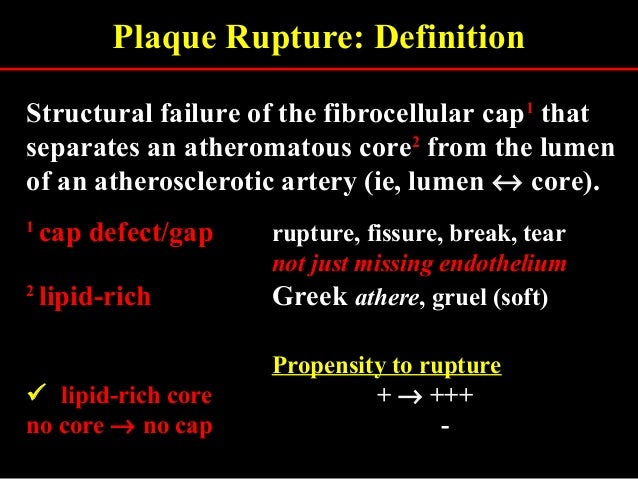 Plaque Rupture: Definition Structural failure of the fibrocellular cap11 that separates an atheromatous core22 from the lu...