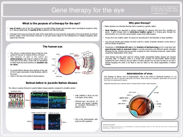 Gene therapy for the eye Courtesy of the Laboratory of Dr Sara Mole and Prof Robin Ali, University College London s.mole@u...