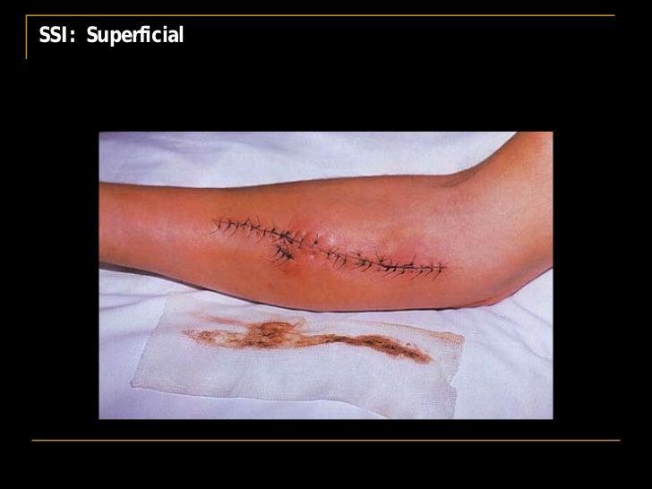 Bearman Nosocomial Infections 1