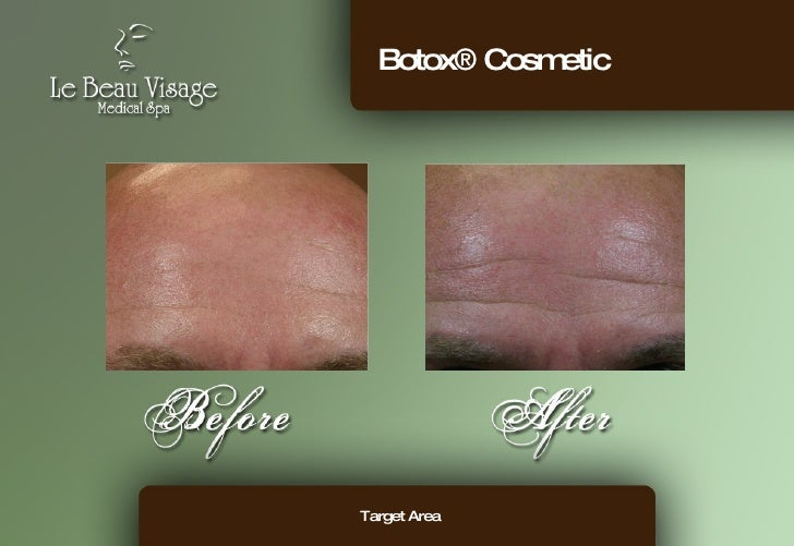 Botox® Cosmetic Target Area