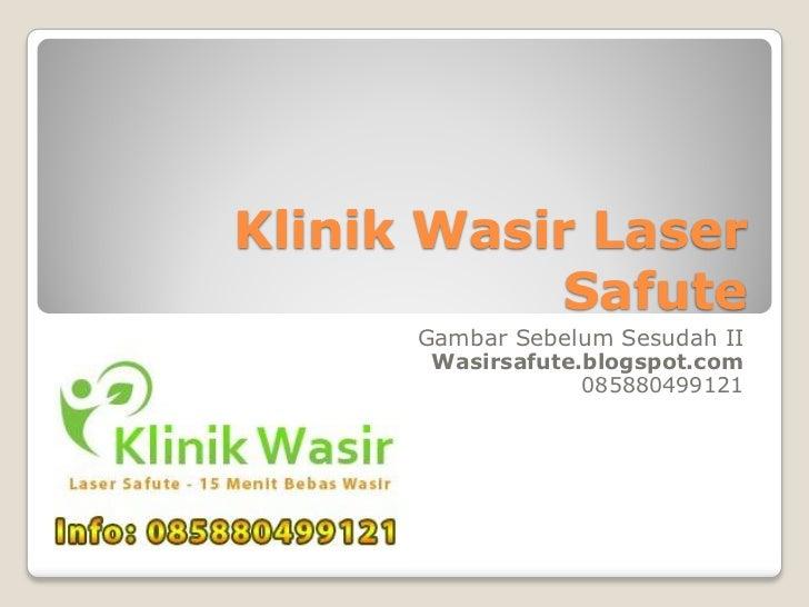 Klinik Wasir Laser            Safute      Gambar Sebelum Sesudah II       Wasirsafute.blogspot.com                   08588...