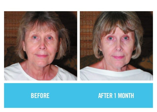 Before After Photos Showcasing Powerful Results