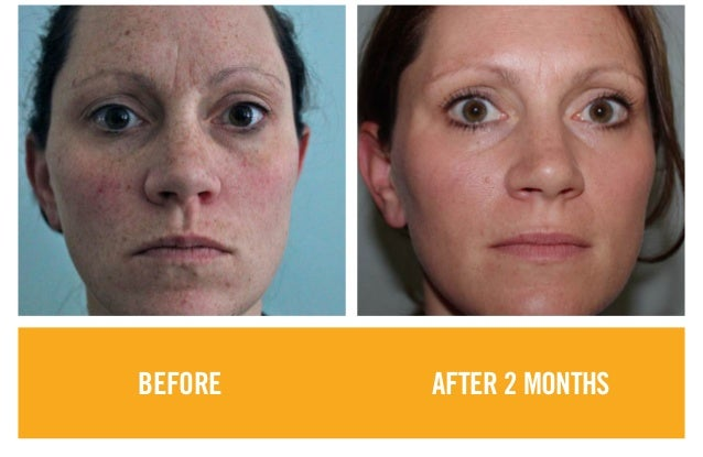 Before and after_ Rodan + Fields Product results