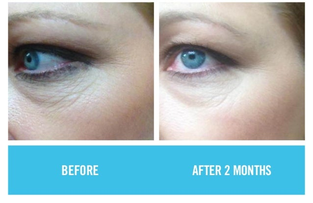 Before And After Rodan Fields Product Results