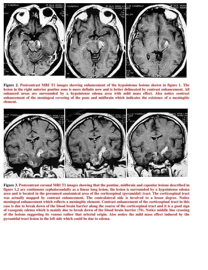 Case Report Behçet's disease, chronic myelomonocytic ...