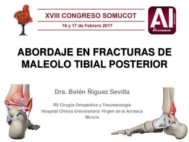 Belen Ñiguez. Abordaje en fracturas del maleolo tibial posterior