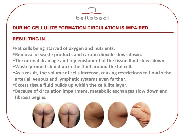 Cellulite Treatment With Cupping Therapy Massage By Bellabaci