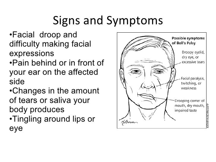 Chvoects Sign Facial Nerve