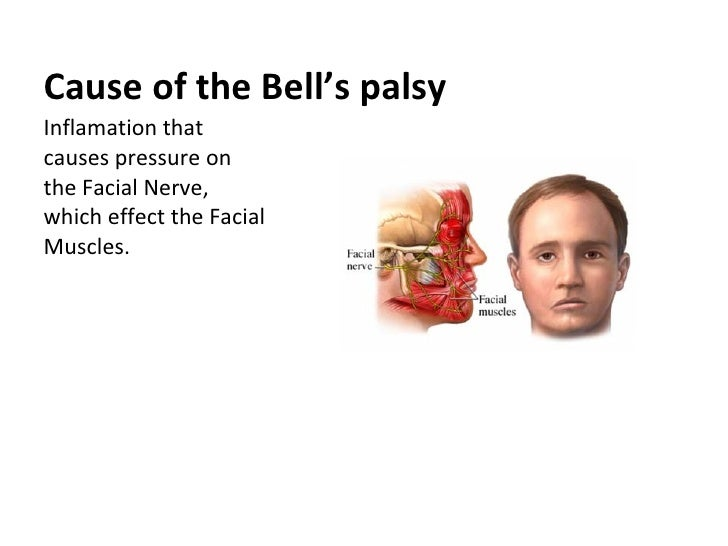 bell's palsy what causes it
