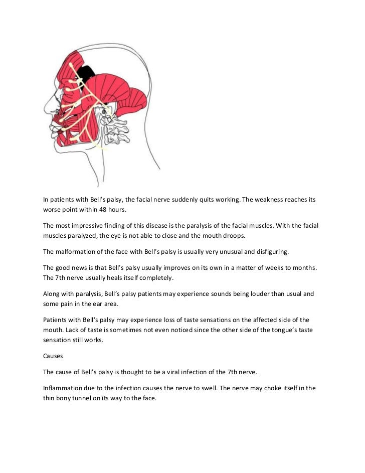 Bell s palsy nursing notes