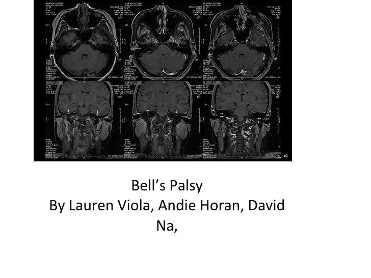Bell's Palsy By Lauren Viola, Andie Horan, David Na,