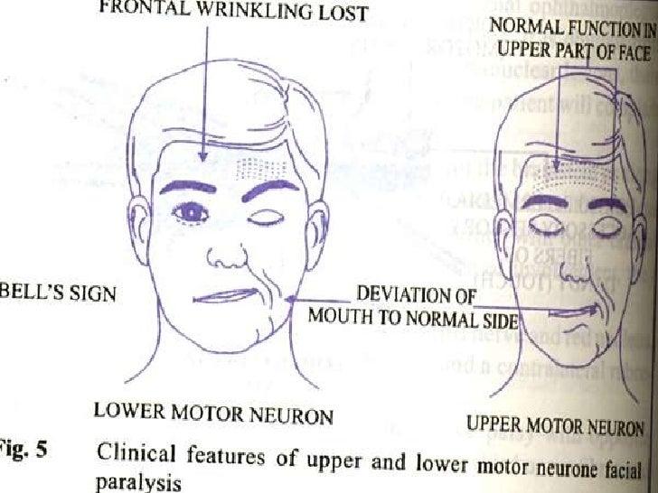 Lower Motor Neuron 7th Nerve Palsy Impremedia Net