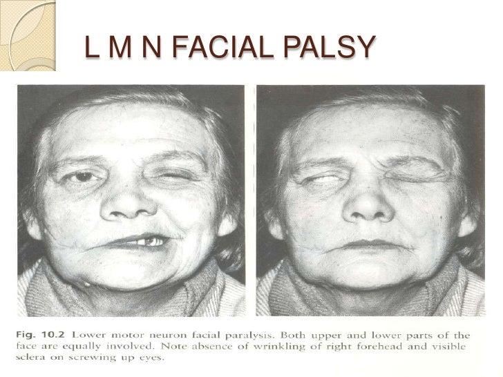 Right facial palsy