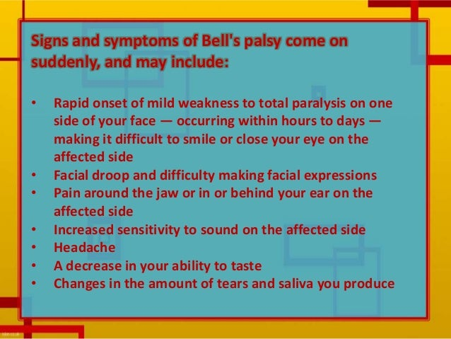 What are the symptoms of Bell's palsy?
