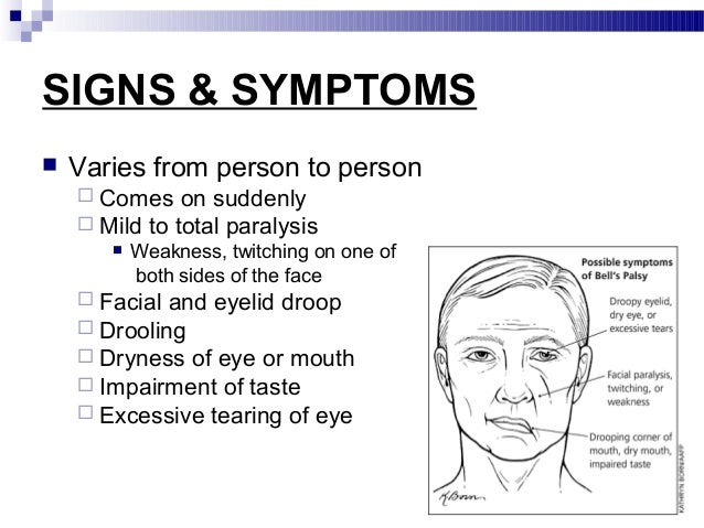 Bell S Palsy Ringing In Ear