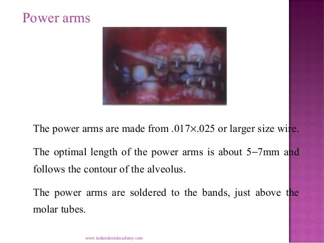 Power arms  The power arms are made from .017×.025 or larger size wire. The optimal length of the power arms is about 5−7m...