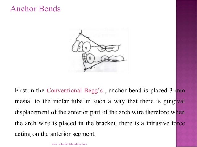 Anchor Bends  First in the Conventional Begg's , anchor bend is placed 3 mm mesial to the molar tube in such a way that th...