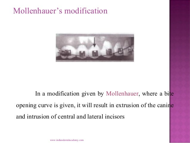 Mollenhauer's modification  In a modification given by Mollenhauer, where a bite opening curve is given, it will result in...