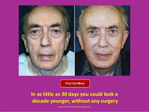wwwfacelift without surgerybiz 25