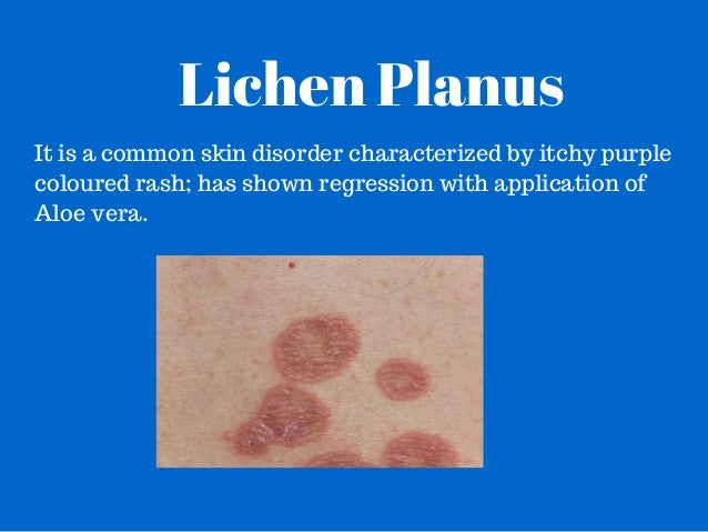 how to get rid of lichen sclerosus scars