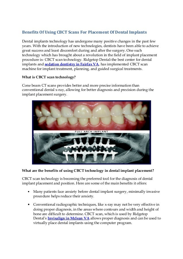 benefits of using cbct scans for placement of dental implants