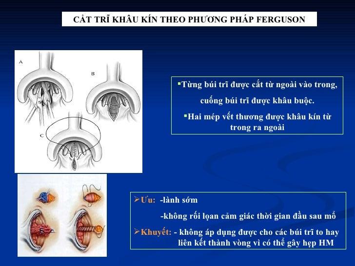 CẮT TRĨ KHÂU KÍN THEO PHƯƠNG PHÁP FERGUSON <ul><li>Từng búi trĩ được cắt từ ngoài vào trong, </li></ul><ul><li>cuống búi t...