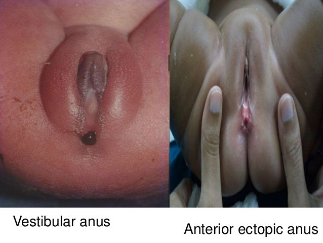 Benign anorectal disorders 2