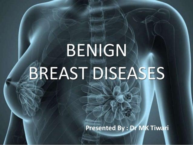BENIGN BREAST DISEASES Presented By : Dr MK Tiwari