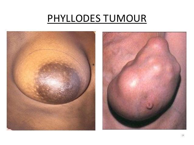 PHYLLODES TUMOUR 24