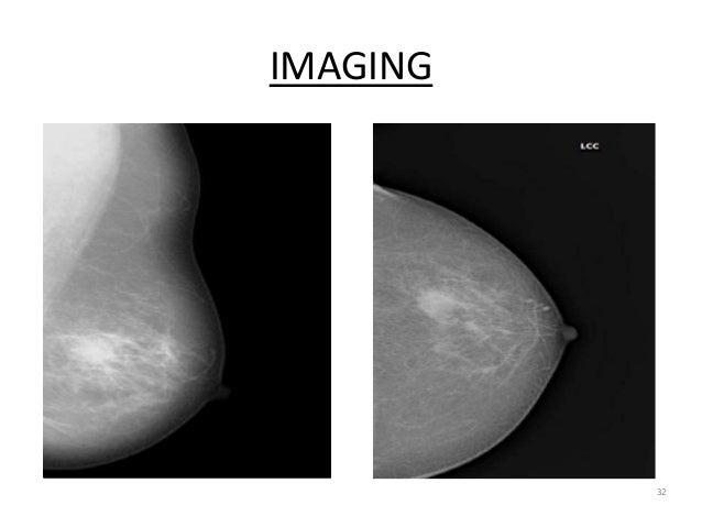 IMAGING 32