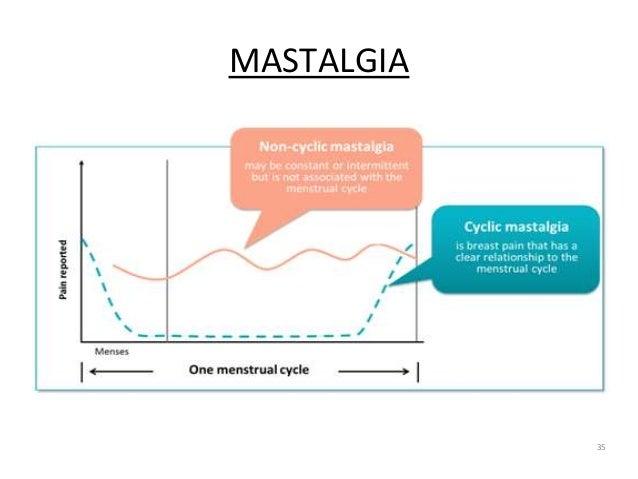 MASTALGIA 35