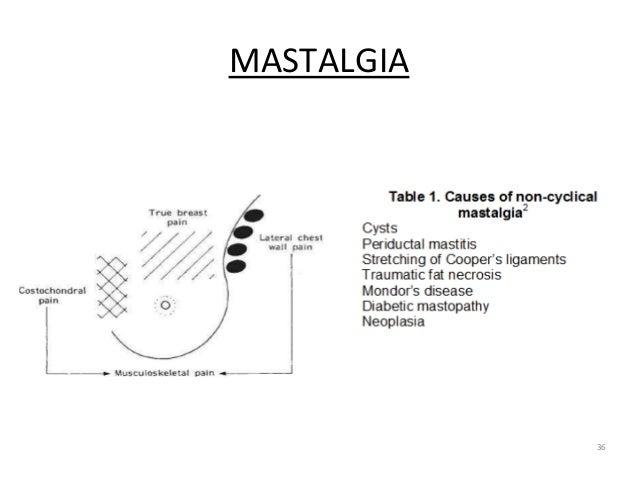 36 MASTALGIA