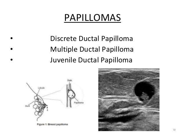 PAPILLOMAS • Discrete Ductal Papilloma • Multiple Ductal Papilloma • Juvenile Ductal Papilloma 50