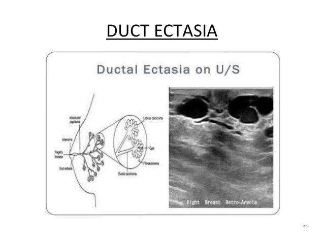 DUCT ECTASIA 52