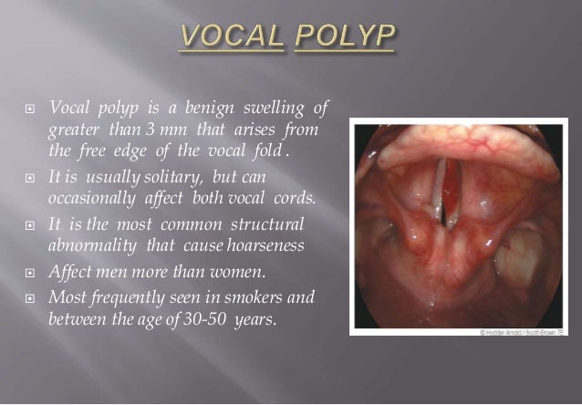 Smokers Vocal Cords