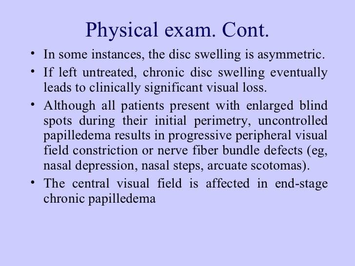 benign intracranial hypertension  drsyed alam zeb 728 x 546 · jpeg