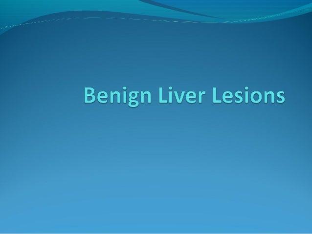 Solitary Liver Lesions A) Benign Tumours 1.Cavernous Haemangioma 2.Adenoma 3.Focal nodular hyperplasia 4.Mesenchymal Hama...